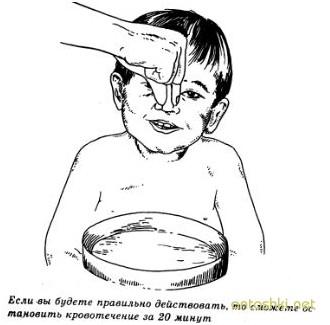 Что делать если у ребенка идет кровь из носа