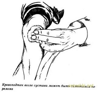 Синяки и переломы у детей