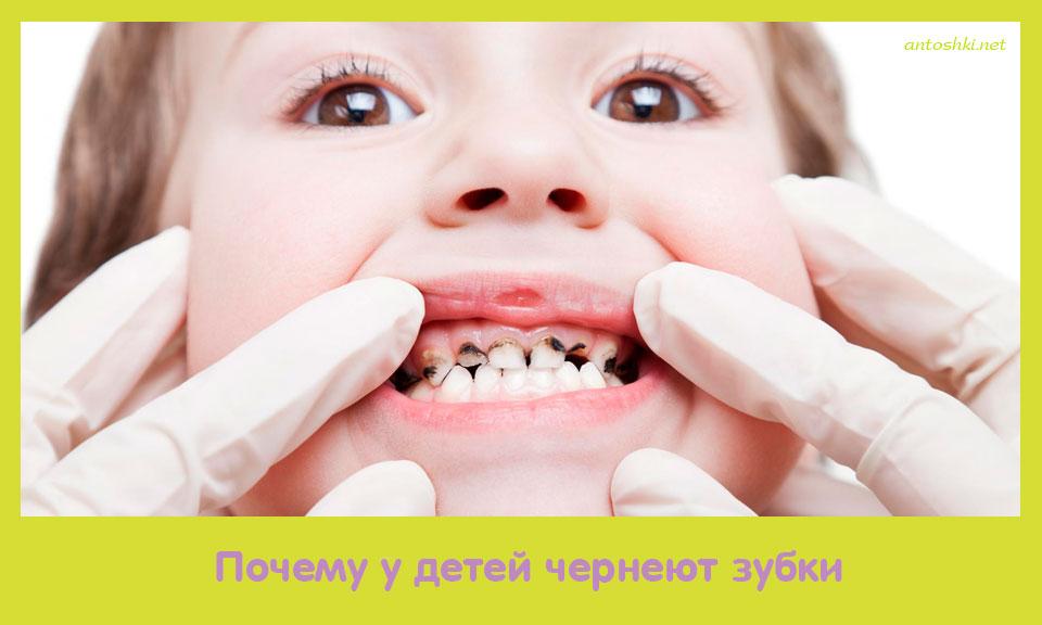 почему, дети, чернеть, зубок
