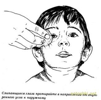 у ребенка гноятся глаза