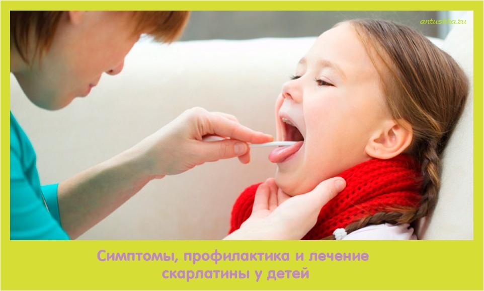 симптом, профилактика, лечение, скарлатина